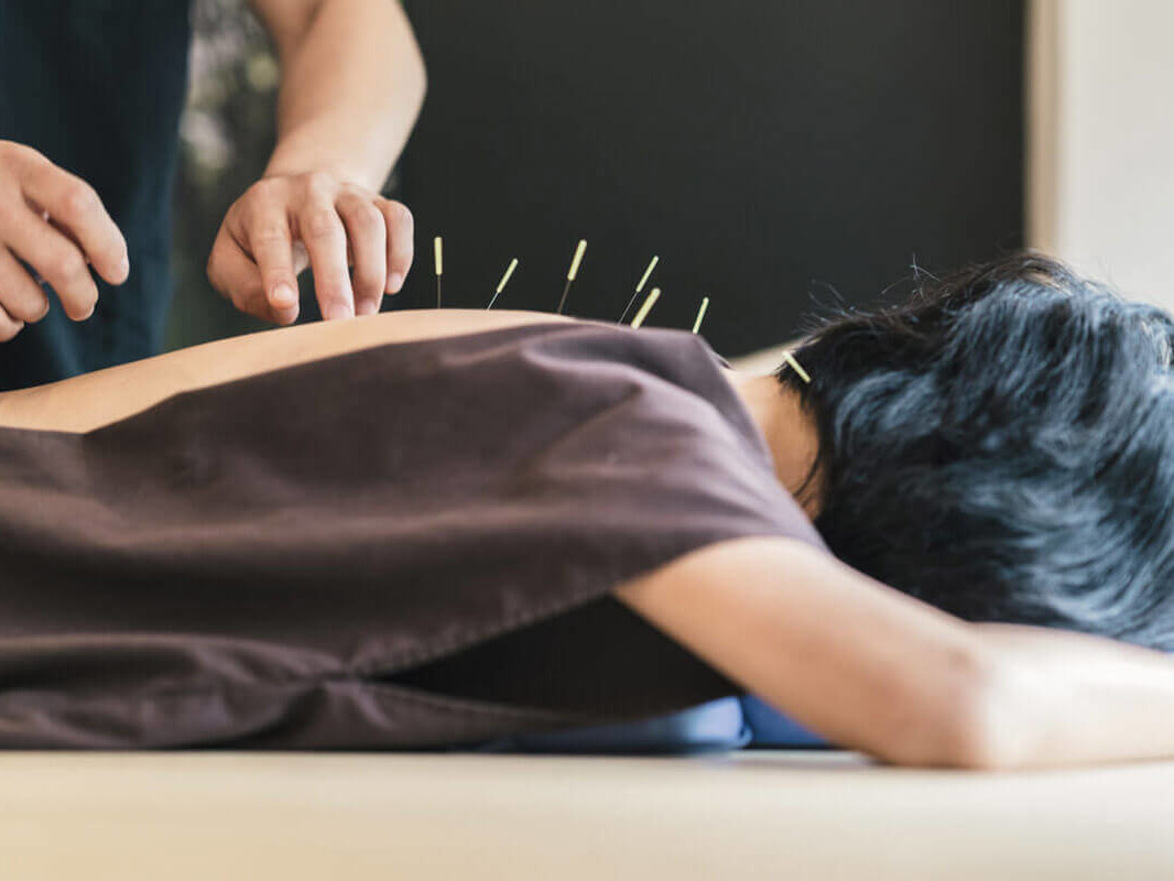 person getting acupuncture done on them by a practitioner