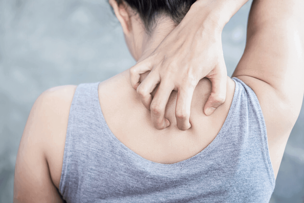 woman itching her back