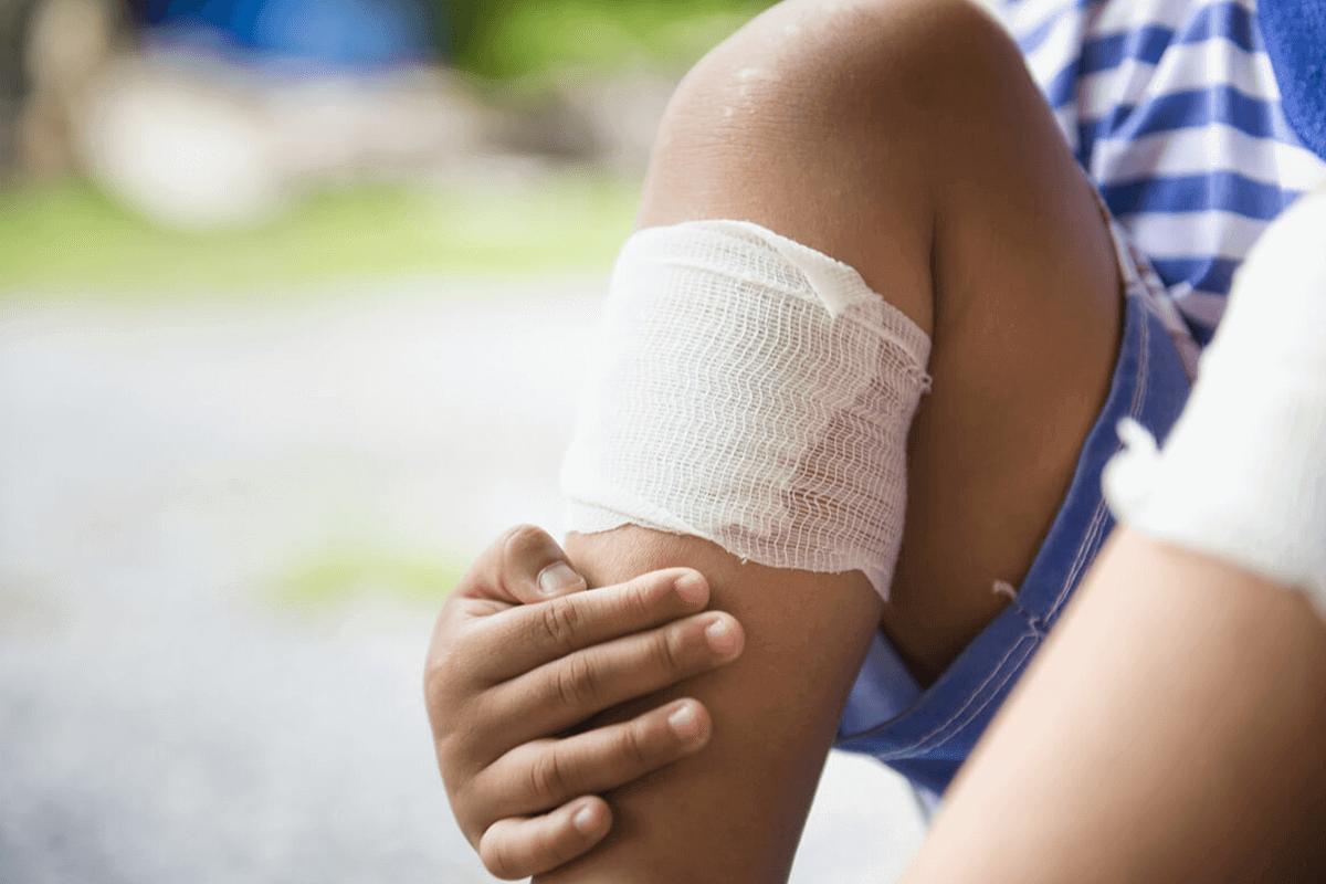 close up of wounded leg bandaged